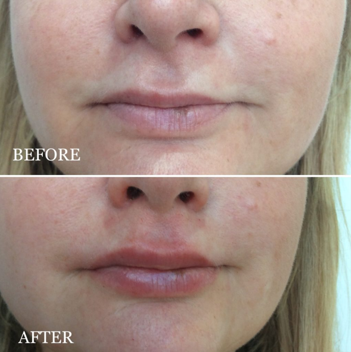 Dermal Filler Treatments – Dr Sofia Aesthetics